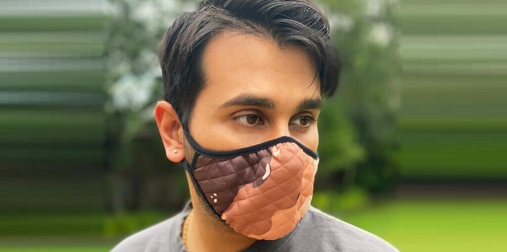 Vee Kapoor awareness about Vitiligo